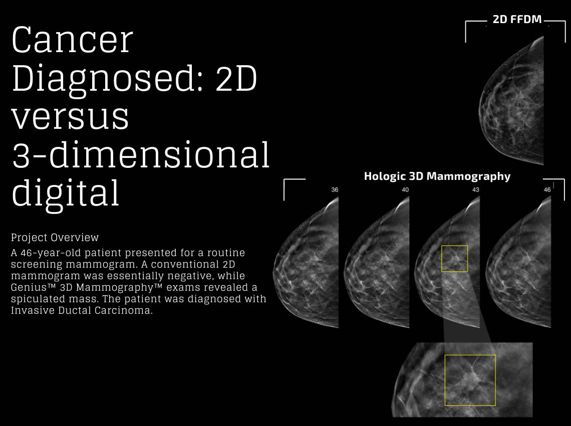 2D vs 3D mammography